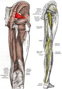 Disc Problems cause Sciatica which can often be alleviated by Spinal Decompression Therapy