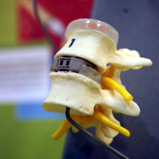 Artificial Spinal Disc