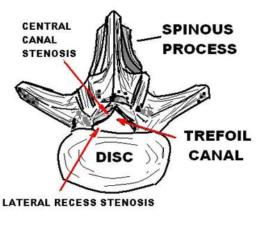 Spinal Stenosis responds to Spinal Decompression Therapy